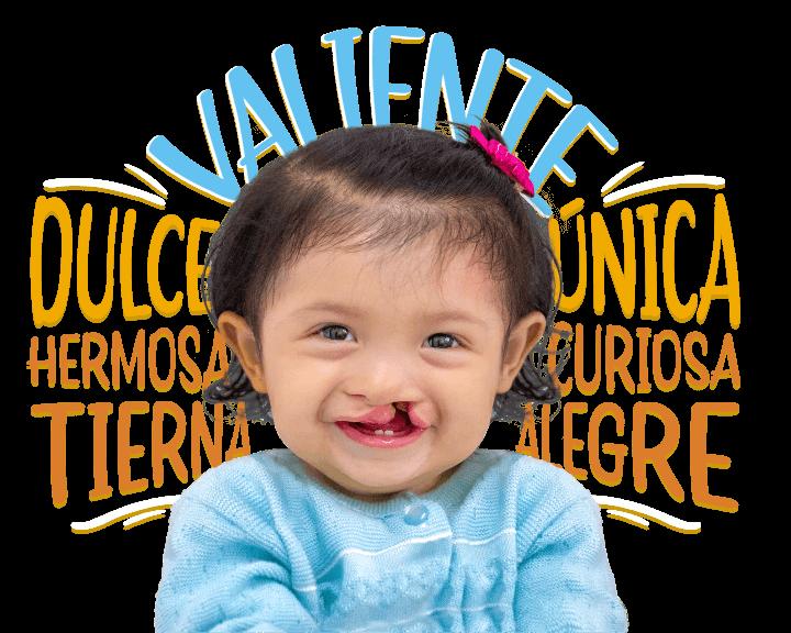 Niña Operation Smile México